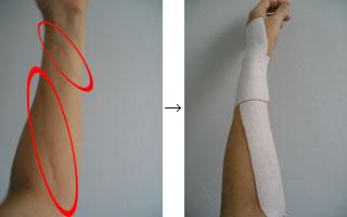 左腕の写真