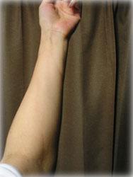 きょうの腕の様子