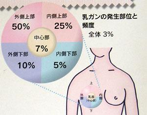 乳がんの発生部位と頻度のポスター