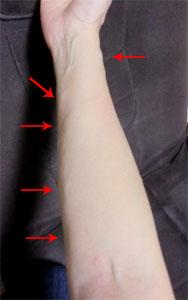 腕の浮腫み