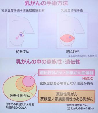乳がんの番組